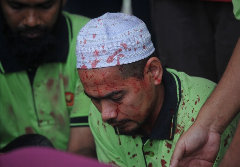 A Muslim man with a blood stain on the her face as they sacrifice during Eid Al-Adha on October 16, 2013 in Kedah outside Kuala Lumpur, Malaysia. Day 2  Muslims around the world celebrate Eid al-Adha by slaughtering sheep, goats, cows and camels to commemorate Prophet Abraham's willingness to sacrifice his son, Ismail, on God's command  Photo: Firdaus Latif